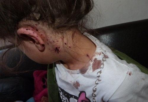 Une fillette de 6 ans a été bléssé au cou par des éclats reçus lors de perquisitions données par le RAID à Nice, jeudi matin dans le mauvais apartement.
