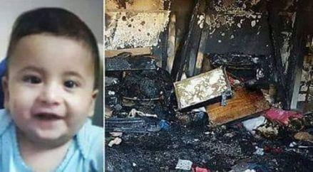 baby burnt
